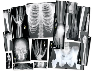 image relating to Printable X Rays titled Human X-Rays - Mounted of 18